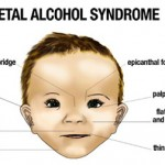 Fetal Alcohol Syndrome – Why are lower levels of drinking recommended for women than for men?